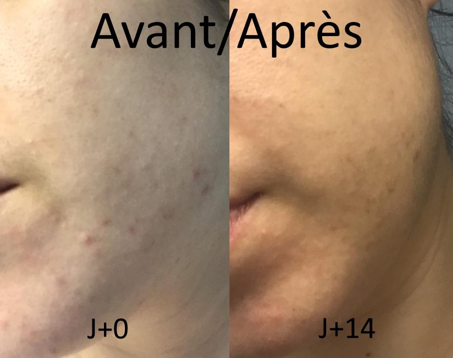 Programme complet Iskin pour peaux acnéiques